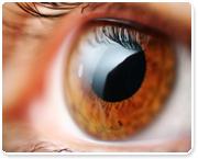 אבחון דרך גלגל העין (אירדיולוגיה) בילדים